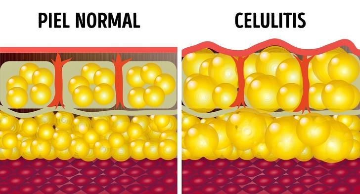 Café para reducir celulitis